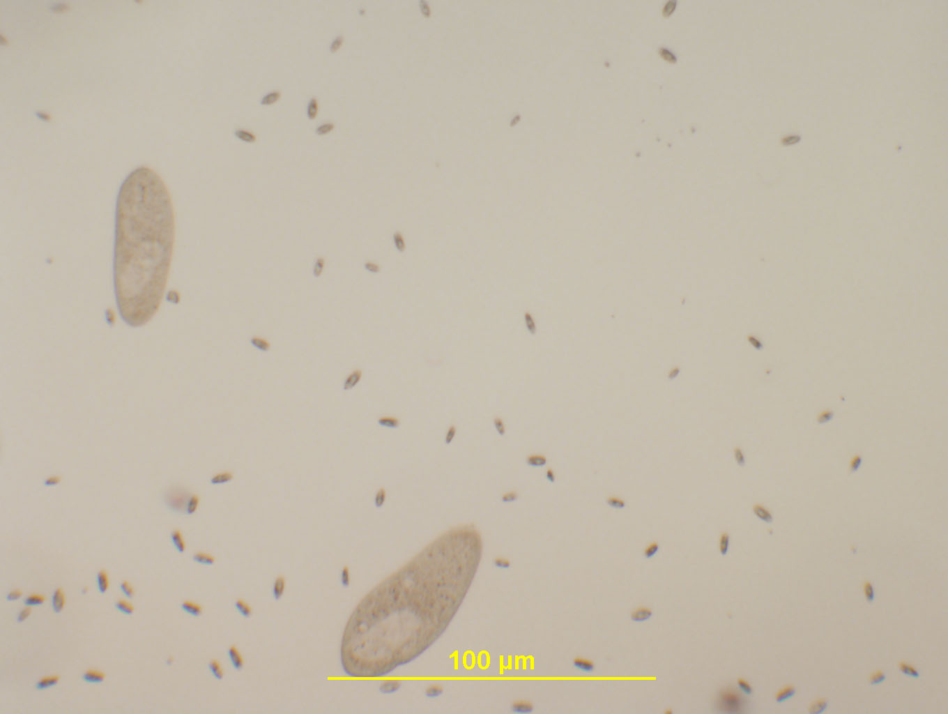 The gallery for --> Euglena Under Microscope 40x